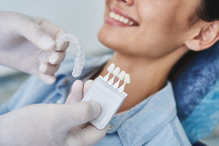 Dentist choosing color of teeth and invisalign braces for lady