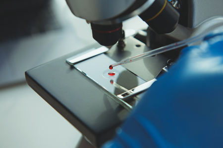 Laboratory assistent making blood test with microscope