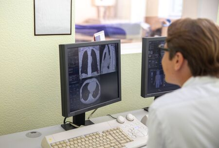 Doctor looking at monitor with chest CT scan images