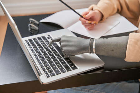 Girl with artificial limb typing on keyboard at home