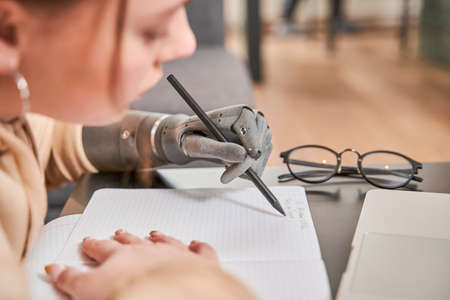 Girl with prosthesis arm sitting at table and writing her homework