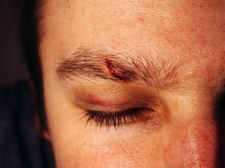 Fresh scar on a mans eyebrows.