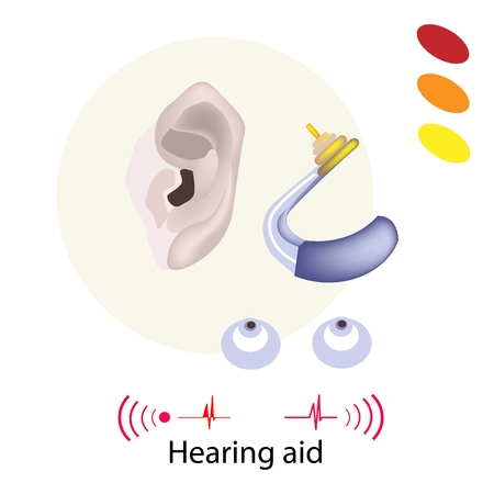wearer: Illustration of Hearing Aid or Deaf Aid, A Device Which Amplifies Sound for The Wearer to Hear Better.