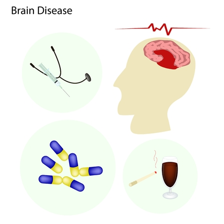 Medical Concept Illustration of Brain and Nerve Diseases with Prevention and Medical Treatments. Vector
