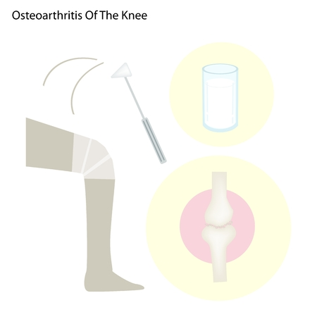 artrosis: Ilustración del concepto de Medicina de la rodilla y Normal Mixta con Knee Leche La osteoartritis puede ser dolorosa e inflamada.