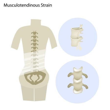 Medical Concept Illustration of Musculotendinous Strain Back Ache or Lumbar Pain.