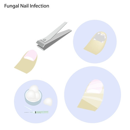 chiropody: Medical Concept Illustration of Fungal Nail Infection and Part of The Treatment Process.
