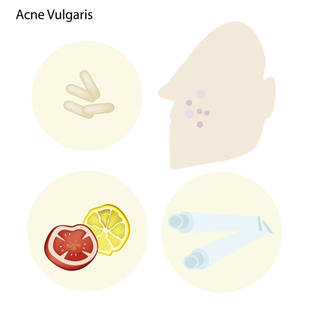 puberty: Medical Concept Illustration of Acne Vulgaris and Many Part of The Facial Treatment Process. Illustration