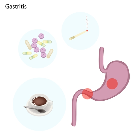 sphincter: Medical Concept Illustration of Gastritis Can Be Caused by Excessive Alcohol Caffein Nicotine Chronic Vomiting Stress and Certain Medications Use. Illustration