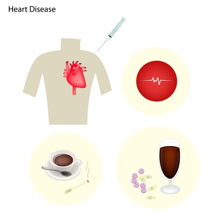 heart disease: Medical Concept Heart Disease Prevention by Quitting Smoking Lowering Cholesterol Controlling High Blood Pressure Maintaining A Healthy Weight and Exercising.