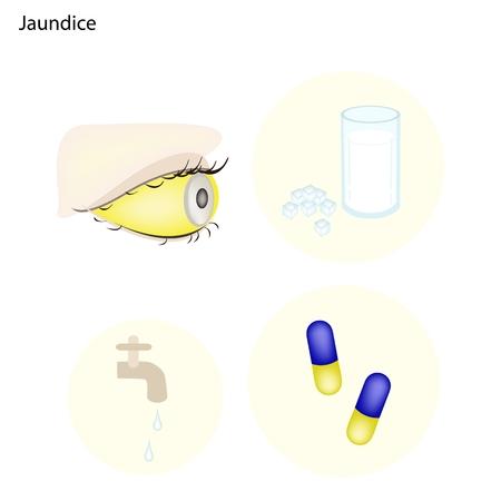 jaundice: Medical Concept Illustration of Jaundice Caused by Increased Amounts of Bilirubin in The Blood.