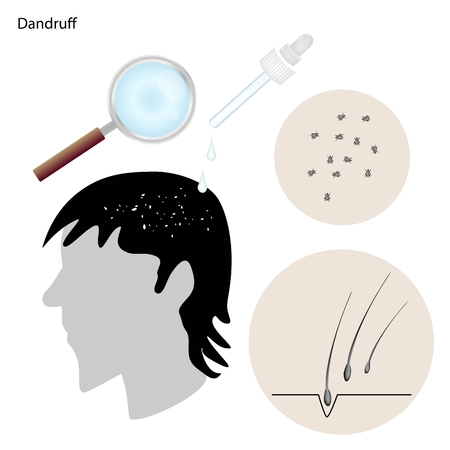 com escamas: Conceito M�dico, Ilustra��o da caspa do couro cabeludo ou Flaky Com Preven��o e Tratamento M�dico, Ilustra��o
