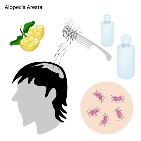 skin infections: Concepto m�dico, Ilustraci�n de la alopecia areata o la p�rdida del pelo Con Prevenci�n y tratamiento m�dico.