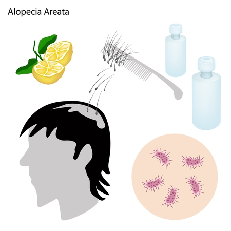 Medical Concept, Illustration of Alopecia Areata or Hair Loss With Medical Prevention and Treatment.