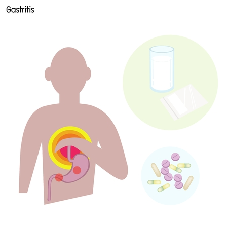 reflux: Medical Concept, Illustration of Gastritis Caused by Excessive Alcohol, Caffein, Nicotine, Chronic Vomiting, Stress and Certain Medications Use. Illustration