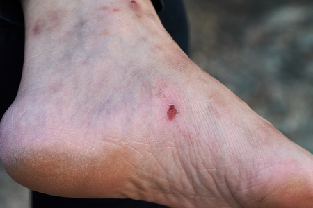 A lot of scar on old woman feet. The cracks at the heel.