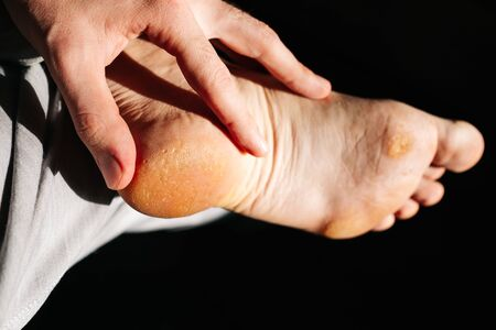 fungus on the foot of the foot. A close-up photograph of a male foot. Selective focus. view from above Stockfoto