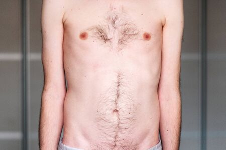 muscular dystrophy of a man with a protrusion of the abdomen