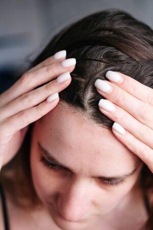 dandruff on the girls head, diseases of the scalp Stock Photo