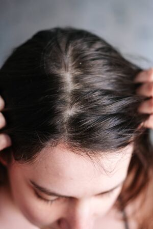 dandruff on the girls head, diseases of the scalp. close up