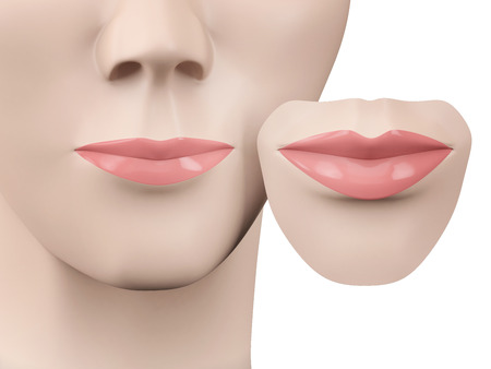augmentation: lip augmentation, before and after Stock Photo