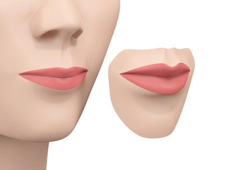 lip augmentation, before and after Stock Photo