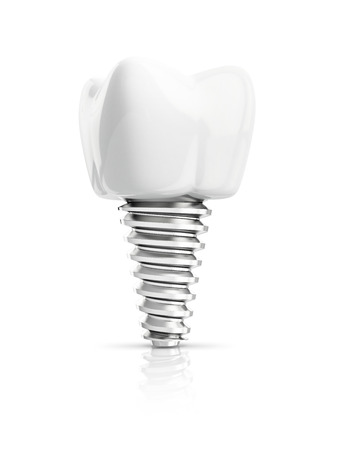 dental implants: tooth implant isolated on white backgroud