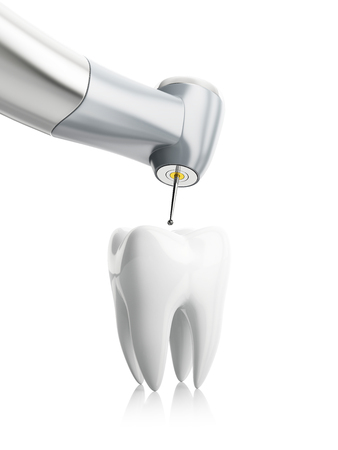 root canal: close-up of the treatment of tooth, concept isolated on white background