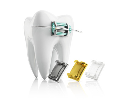 bracket: closeup metal bracket on tooth, with samples of metallic gold and ceramic braces, isolated on white background