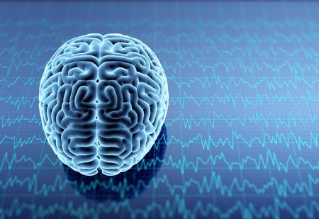X-ray human brain. 3D illustration.