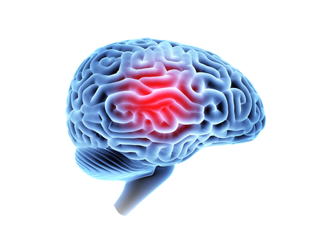 Headache area on brain X-ray, side view isolated on white background. 3D illustration.