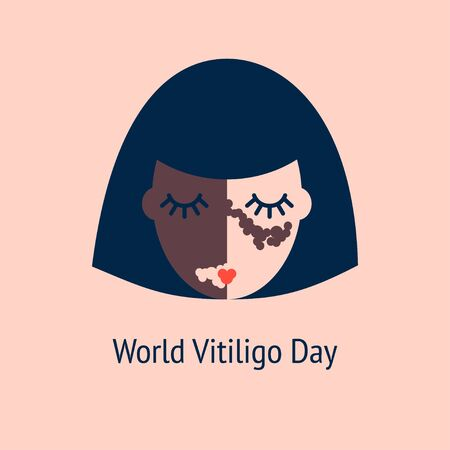 illustration of a woman with vitiligo on a light background. world vitiligo day. beauty in differences 向量圖像