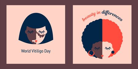 set of two illustrations of a woman with vitiligo on a light background. world vitiligo day. beauty in differences