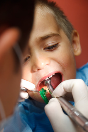 drilled: Little boy sitting at dentist, his teeth being drilled