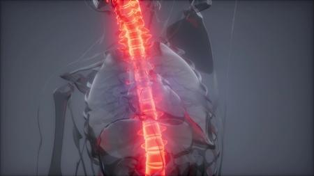 Hurt Spine. Male Backbone. Backache, Headache - Vertebrae Pain Stock Photo
