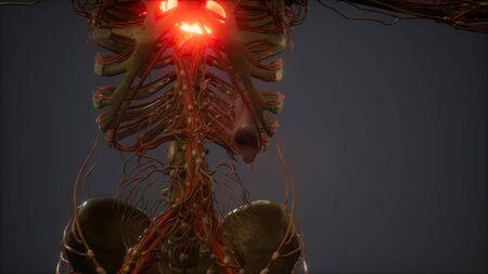 CG Animation Of A Sick Human Heart Stockfoto