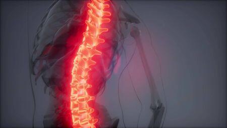 backache in backbone. science anatomy scan of human spine bones glowing