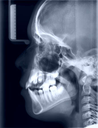 roentgenogram: X-ray picture of the skull of the person. Toned negative  Stock Photo