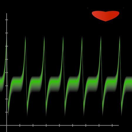Cardiology chart Stock Photo
