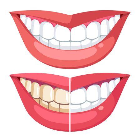 Blanchiment des dents, dentisterie esthétique buccale. Sourire à pleines dents avant, après blanchiment. Comparaison des dents avec la plaque et une hygiène saine blanche. Modèle de bouche de femme, lèvres. Illustration vectorielle plane isolée