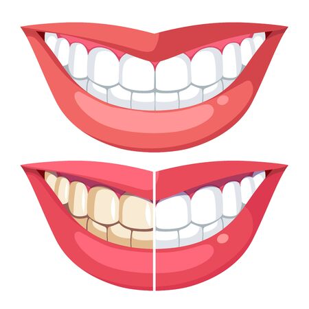 Teeth whitening, mouth cosmetic dentistry. Toothy smile before, after whitening. Comparing teeth with plaque and healthy hygiene white. Woman mouth model, lips. Flat vector illustration isolated