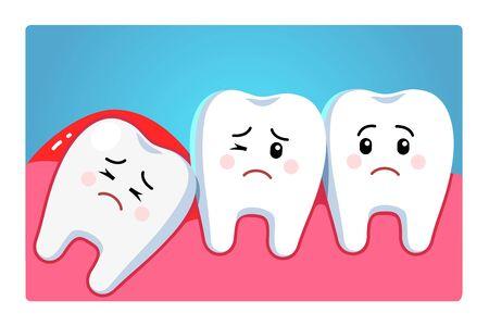 Caractère de dent de sagesse impacté poussant les dents adjacentes provoquant une inflammation, des maux de dents, des douleurs aux gencives. Problème de troisième molaire. Clipart de dentisterie et de chirurgie dentaire. Illustration vectorielle de style plat