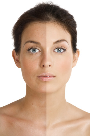 isolated spot: Female face divided into two parts one healthy and one UV damaged. Stock Photo