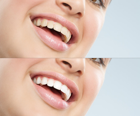 Beautiful young European woman with white teeth. Before and after treatment difference. Stock Photo