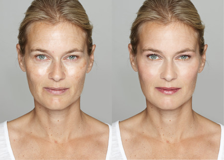 freckles: Woman before and after digital makeup and retouching makeover on face. Transformation concept. Stock Photo