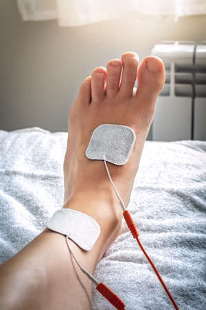 Foot on stretcher subjected to a medical treatment of electro stimulation with patches and electric wave