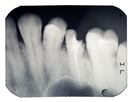 깨진 된 치아의 진짜 엑스레이 사진, 흰 배경에 고립 된