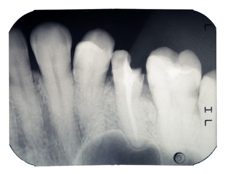 Real x-ray picture of the broken tooth, isolated on a white background