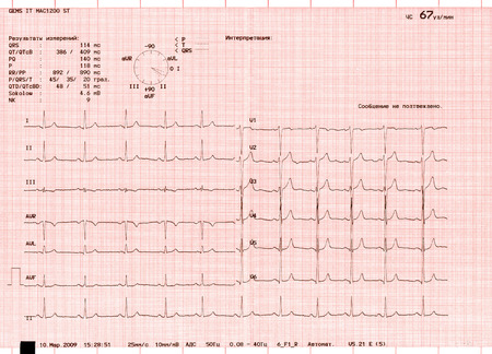 Die Graphen eines Elektrokardiogramms Standard-Bild - 35128449