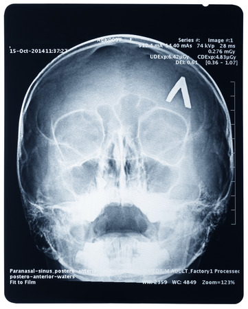 jawbone: X-ray of a human skull, isolated on white background Stock Photo
